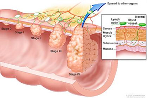 infographic showing the stages of colon cancer