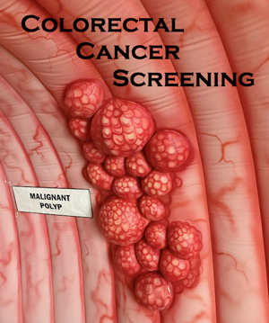 graphic of colorectal cancer