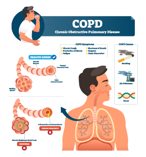 illustration of COPD and the lungs