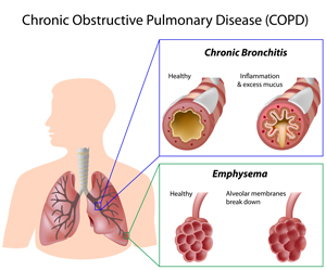 COPD lung illustration